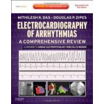 Electrocardiography of Arrhythmias, A Comprehensive Review: A Companion to Cardiac Electrophysiology