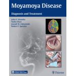 Moyamoya Disease: Diagnosis and Treatment