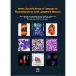 WHO Classification of Tumours of Haematopoietic and Lymphoid Tissues (WHO Classification of Tumours, Volume 2)