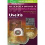 Uveitis (Color Atlas and Synopsis of Clinical Ophthalmology)