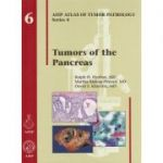 Tumors of the Pancreas (AFIP Atlas of Tumor Pathology, Series 4, Number 6)