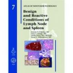 Benign and Reactive Conditions of Lymph Node and Spleen (AFIP Atlas of Non-Tumor Pathology, Series 1, Number 7)