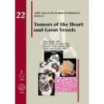 Tumors of the Heart and Great Vessels (AFIP Atlas of Tumor Pathology, Series 4, Number 22)