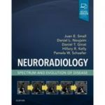 Neuroradiology: Spectrum and Evolution of Disease