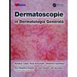 Dermatoscopie în Dermatologia Generală