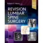 Revision Lumbar Spine Surgery