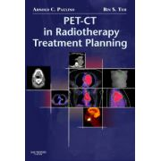 PET-CT in Radiotherapy Treatment Planning