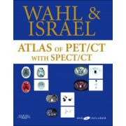 Atlas of PET/CT with SPECT/CT (with DVD)