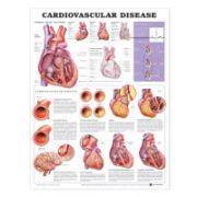 Cardiovascular Disease Anatomical Chart