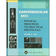 Cardiovascular MRI: Physical Principles to Practical Protocols
