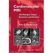 Cardiovascular MRI: 150 Multiple-Choice Questions and Answers
