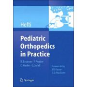 Pediatric Orthopedics in Practice