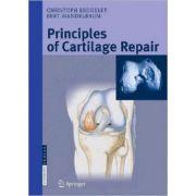 Principals of Cartilage Repair