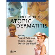 Textbook of Atopic Dermatitis