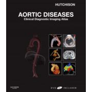 Aortic Diseases: Clinical Diagnostic Imaging Atlas (with DVD)