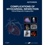 Complications of Myocardial Infarction: Clinical Diagnostic Imaging Atlas (with DVD)