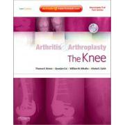 Arthritis and Arthroplasty: Knee (with DVD)
