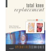 Operative Techniques: Total Knee Replacement (with DVD)
