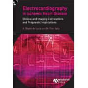 Electrocardiography in Ischemic Heart Disease: Clinical and Imaging Correlations and Prognostic Implications