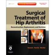 Surgical Treatment of Hip Arthritis: Reconstruction, Replacement, and Revision