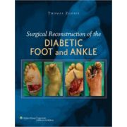 Surgical Reconstruction of the Diabetic Foot and Ankle