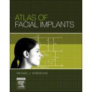 Atlas of Facial Implants