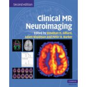 Clinical MR Neuroimaging: Physiological and Functional Techniques