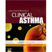 Clinical Asthma, Expert Consult - Online and Print