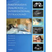 Perioperative Diagnostic and Interventional Ultrasound (with DVD)