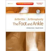 Arthritis and Arthroplasty: Foot and Ankle