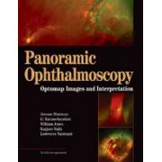 Panoramic Ophthalmoscopy, Optomap Images and Interpretation