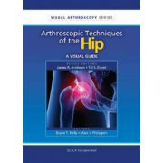 Arthroscopic Techniques of the Hip: A Visual Guide