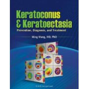 Keratoconus and Keratoectasia: Prevention, Diagnosis, and Treatment