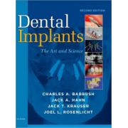 Dental Implants: Art and Science