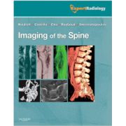 Imaging of the Spine (Expert Radiology Series)