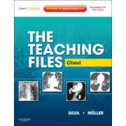 Teaching Files: Chest
