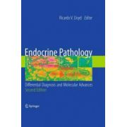 Endocrine Pathology: Differential Diagnosis and Molecular Advances