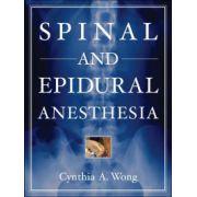 Spinal Epidural Anesthesia