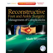 Reconstructive Foot and Ankle Surgery: Management of Complications (with DVD)
