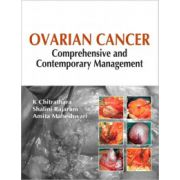 Ovarian Cancer: Comprehensive and Contemporary Management