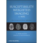 Susceptibility Weighted Imaging in MRI: Basic Concepts and Clinical Applications