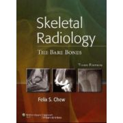 Skeletal Radiology: Bare Bones