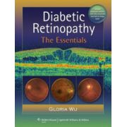 Diabetic Retinopathy: Essentials