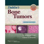 Dahlin's Bone Tumors
