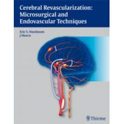 Cerebral Revascularization: Microsurgical and Endovascular Techniques