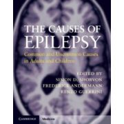 Causes of Epilepsy: Common and Uncommon Causes in Adults and Children