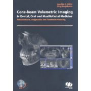 Cone-beam Volumetric Imaging in Dental, Oral and Maxillofacial Medicine: Fundamentals, Diagnostics and Treatment Planning
