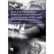 Oral and Intravenous Bisphosphonate Induced Osteonecrosis of the Jaws: History, Etiology, Prevention, and Treatment