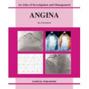 Angina: An Atlas of Investigation and Management