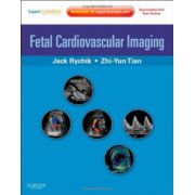 Fetal Cardiovascular Imaging: A Disease Based Approach